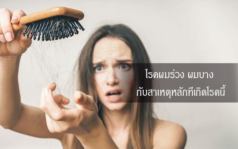 Hair-loss-