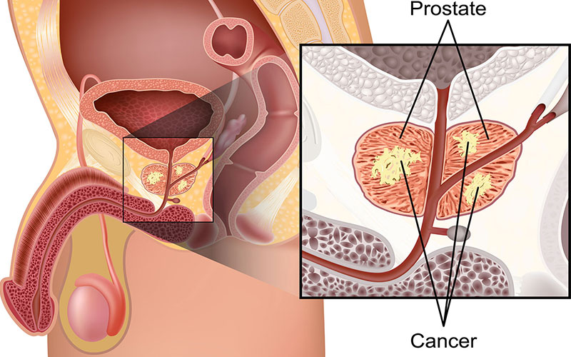 Prostate-Cancer-
