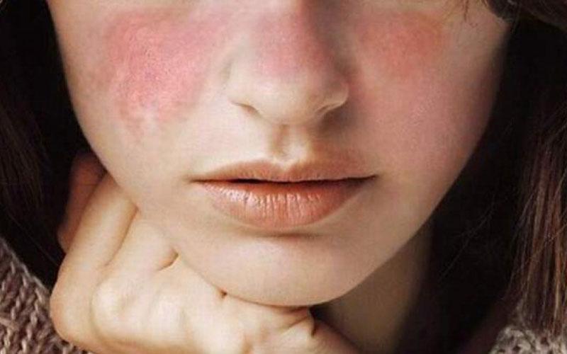 SLE-Disease-photo