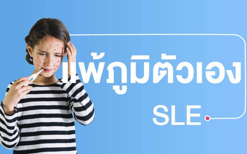 SLE-Disease